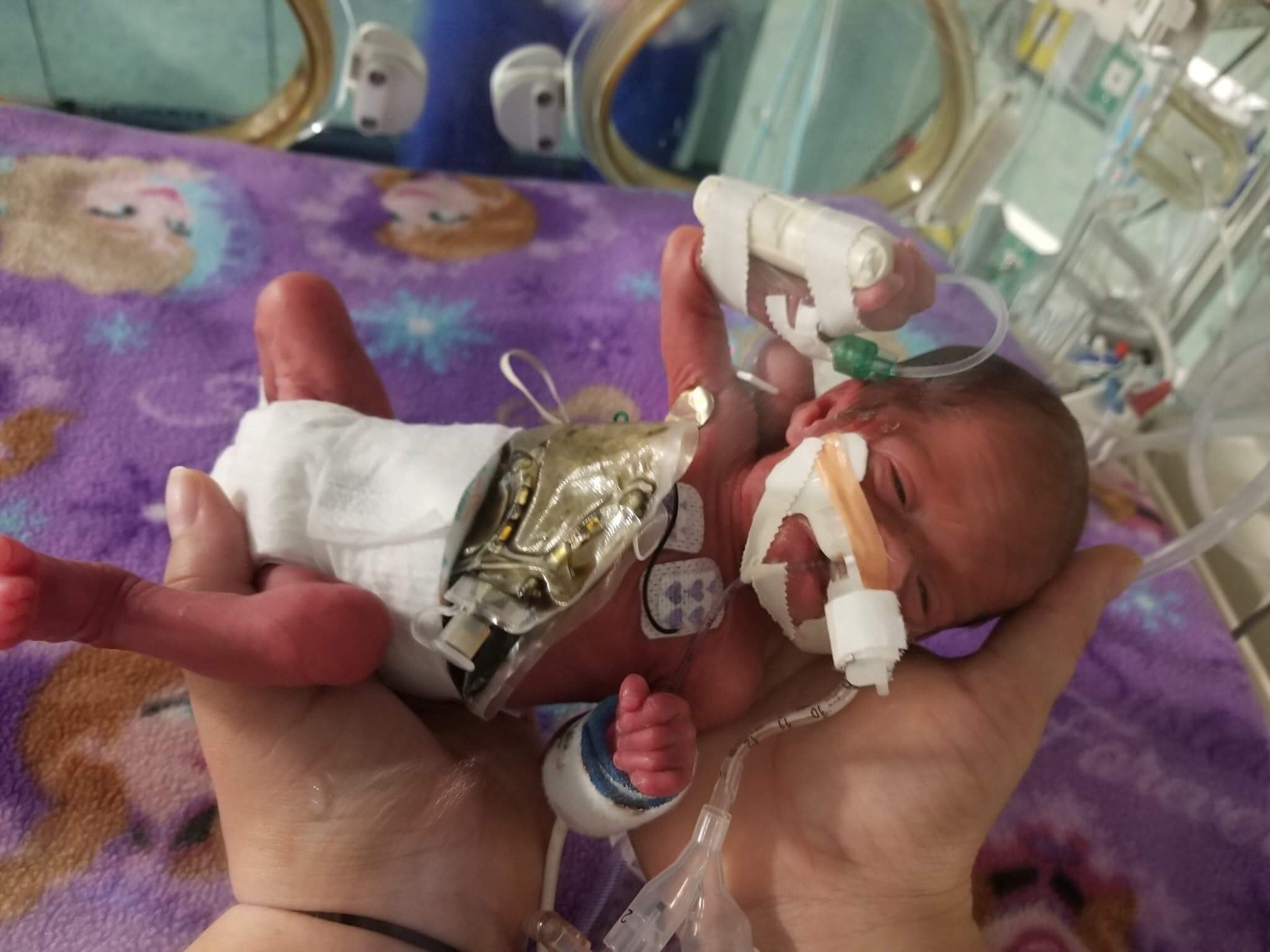 Emma early in her stay at the NICU